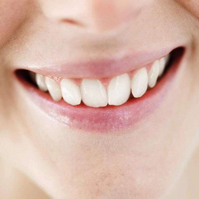 Can I Exercise After Dental Work?