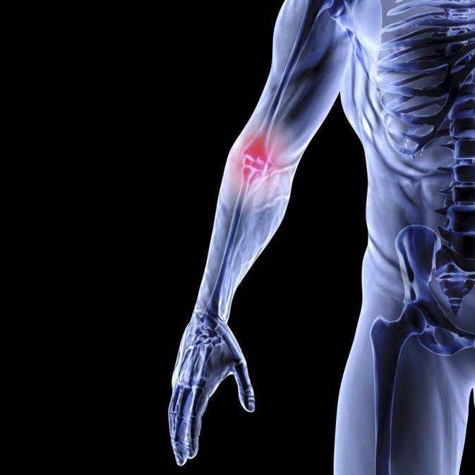 Supplements for Joint Repair