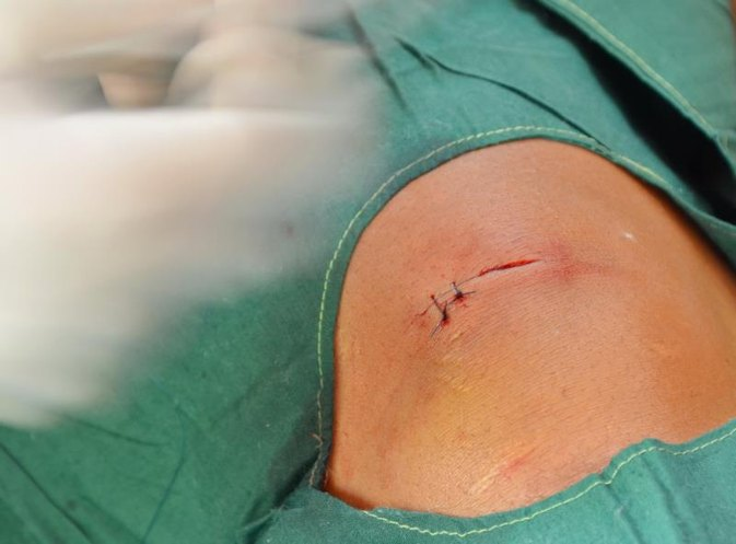 How to Remove Running Sutures