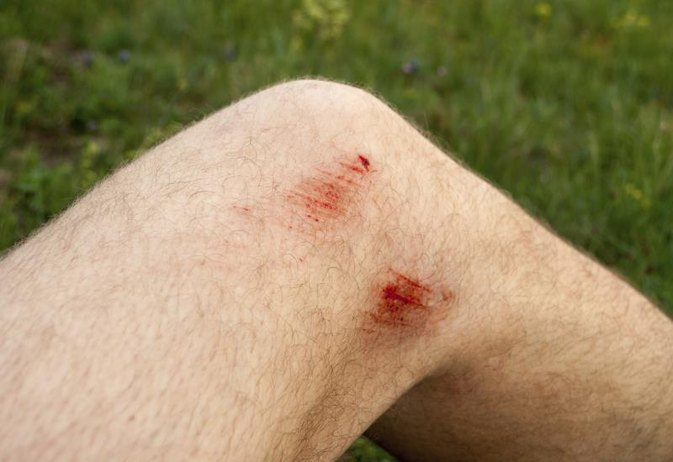 Signs and Symptoms of Infection in a Scrape