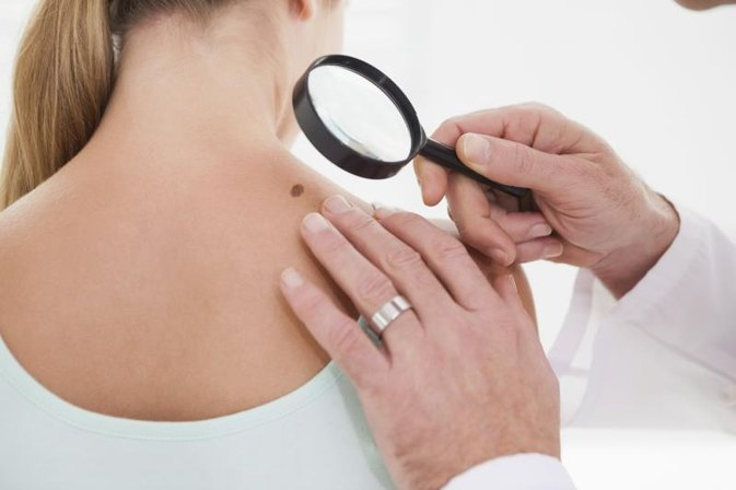 What Causes Dark Spots on the Arms & Shoulders?