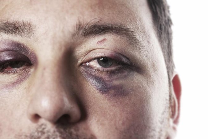 Fractured Eye Socket Symptoms | LIVESTRONG.COM
