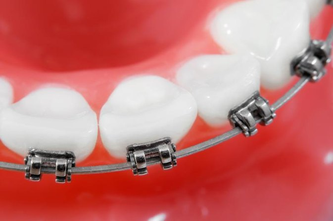 What to Do if Kids Need Braces & You Can't Afford Them