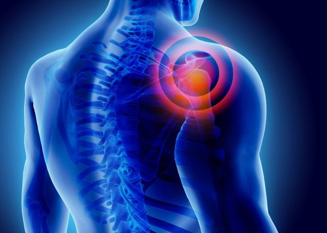 Exercises You Can Do with a Sprained Shoulder