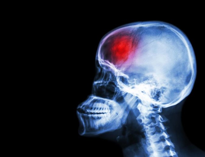 The Scary Reason Millennials' Stroke Risk Is Skyrocketing