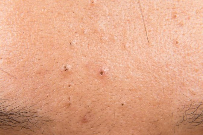 how to draw out a deep blackhead
