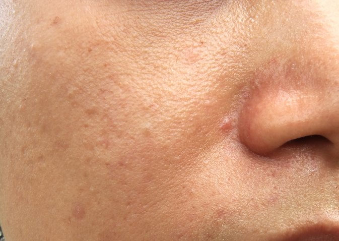 How to get rid of redness from spots