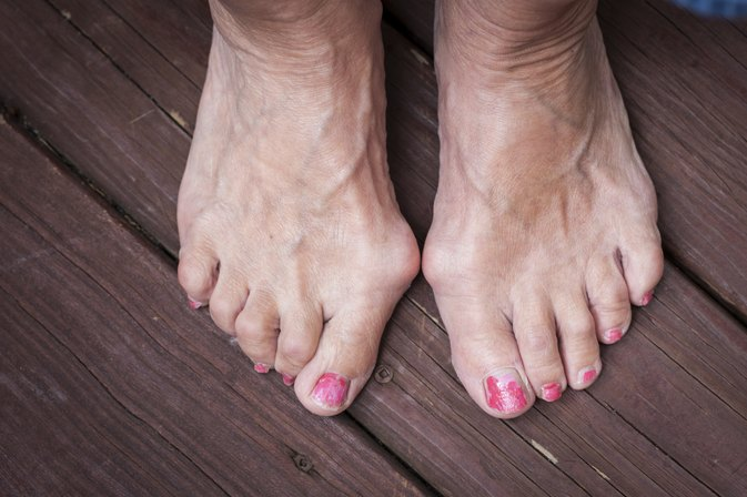 What Are the Treatments for Bunions Without Surgery?