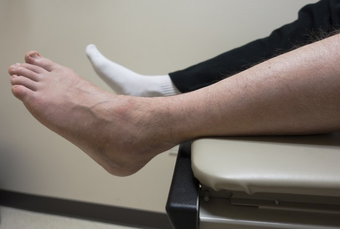 Causes of a Swollen Ankle With No Pain