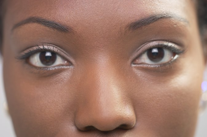 How to Remove Dark Circles Under the Eyes in African Americans