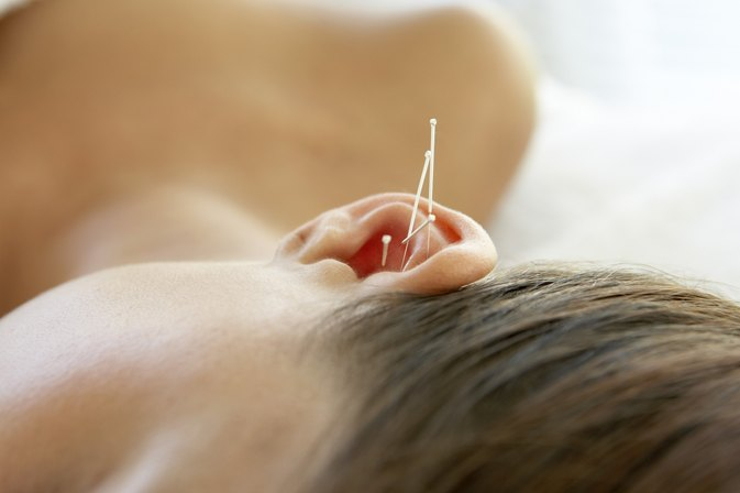 Acupuncture Ear Points for Weight Loss