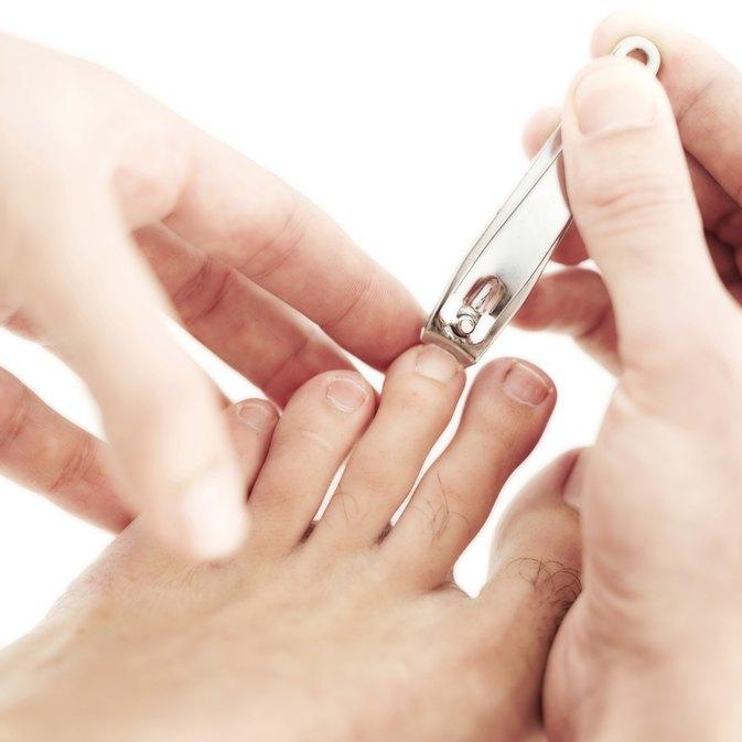 How to Cut Out an Ingrown Toenail Edge | LIVESTRONG.COM