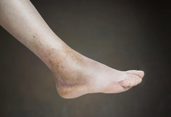 causes of swelling in legs, hands & feet | livestrong, Skeleton