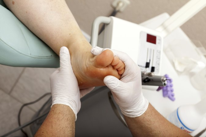 Do Podiatrists Remove Corns?