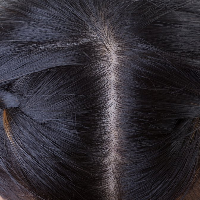 How to Remove Scalp Scars