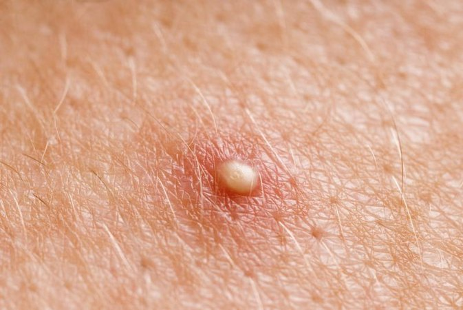 How to Get Rid of Body Blemishes