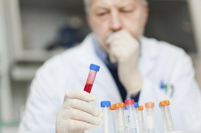 Dilantin Drug Test