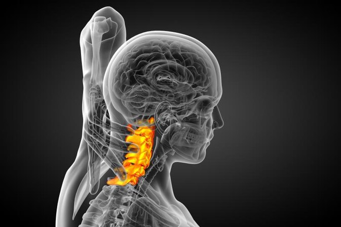 Exercises for Cervical Spondylosis With Foraminal Stenosis