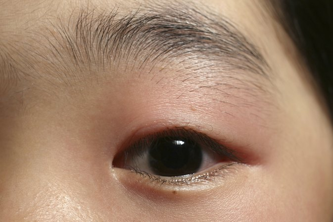 How to Treat a Swollen Eyelid