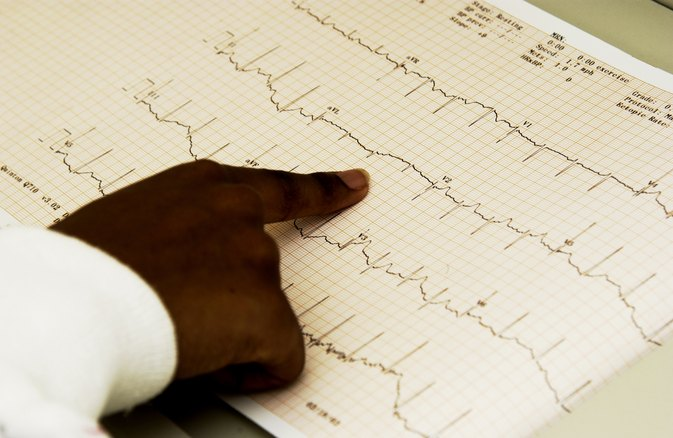 Causes of Abnormal EKG Results