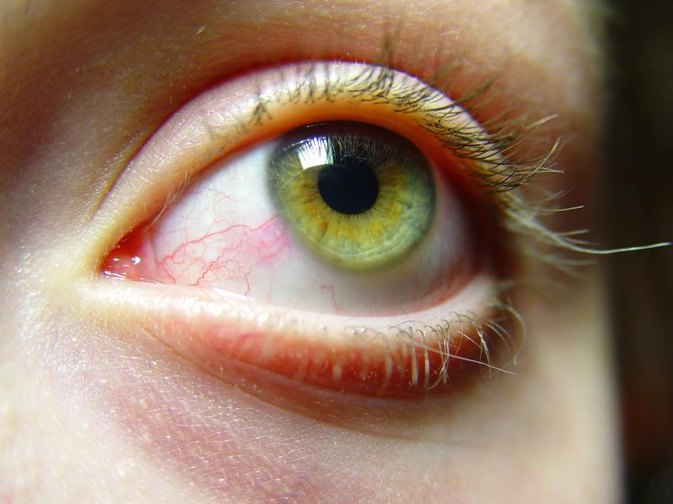 How to Get Rid of Red, Puffy Eyes