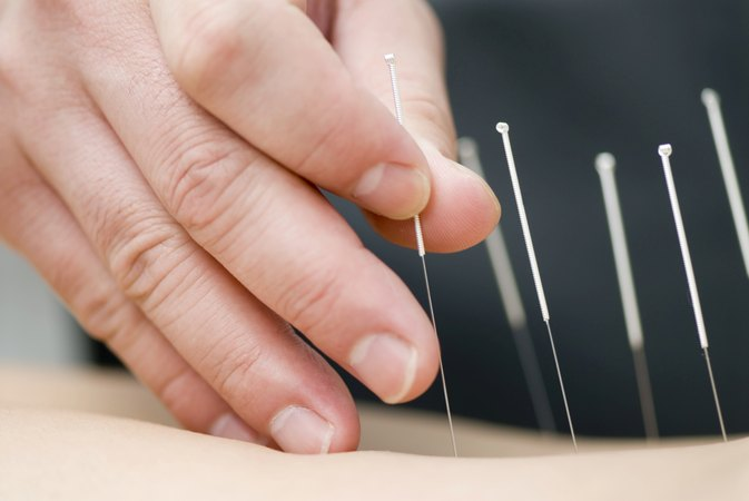 Acupuncture for Balance and Dizziness