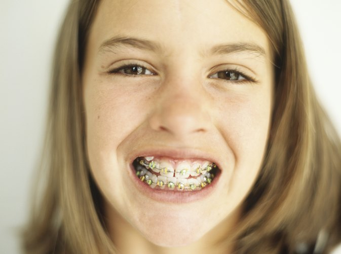How Are Braces Removed From Teeth?