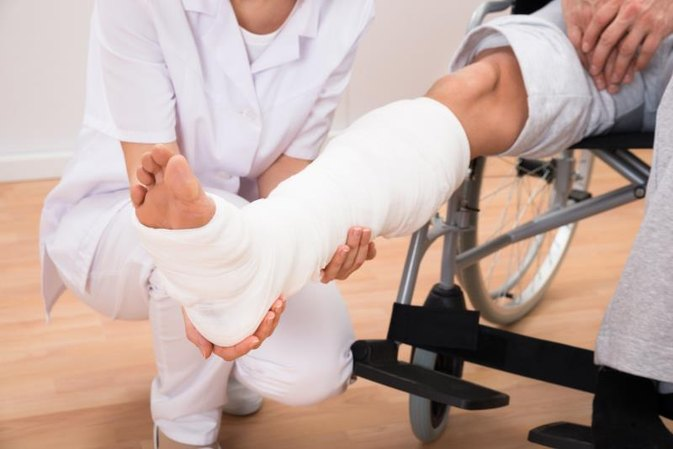 Treatment for a Broken Fibula