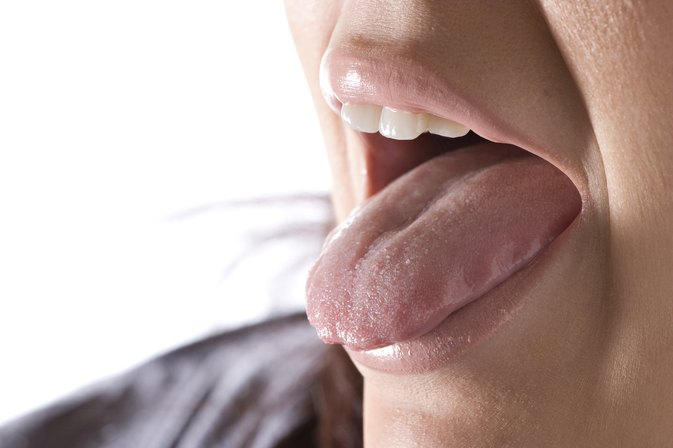 Can Certain Foods Cause Geographic Tongue?