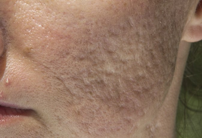 What Do Acne Craters Look Like?