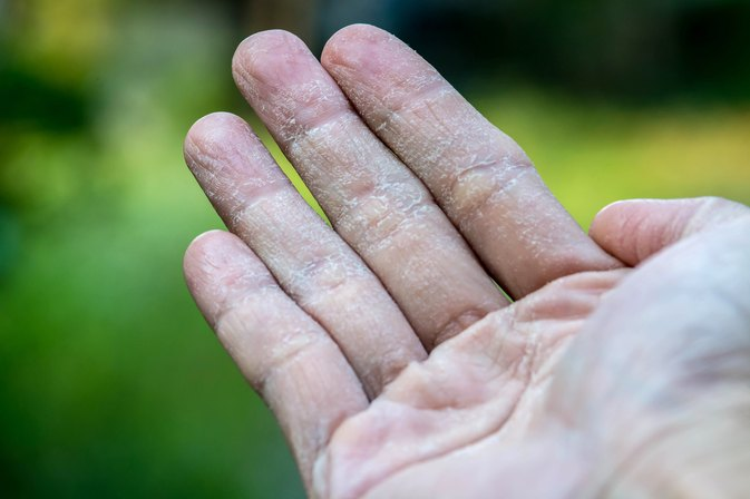 Zinc Oxide to Treat Eczema