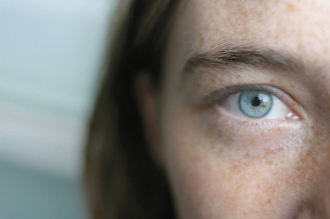 Is It Possible to Get Rid of Dark Circles Permanently?