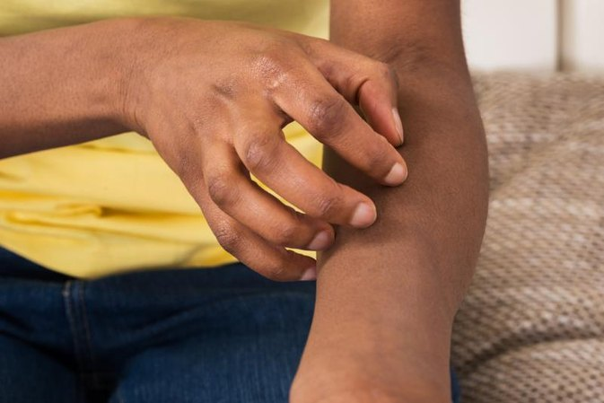 Medical Conditions That Cause Itchy Skin