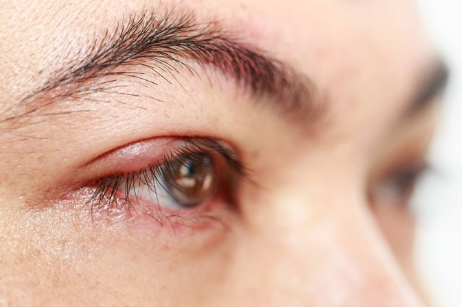 How to Get Rid of Styes in Your Eyelids