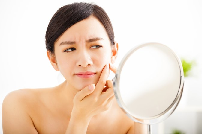 How to Get Rid of Acne Sores on the Face