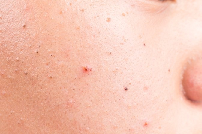 5 Things You Should Know About Isotretinoin for Acne