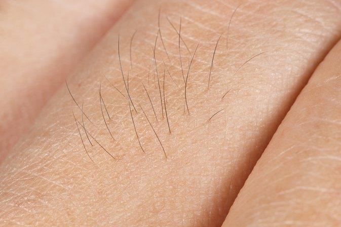 papule acne | livestrong, Skeleton