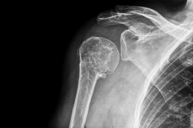 What Are the Treatments for a Broken Shoulder?