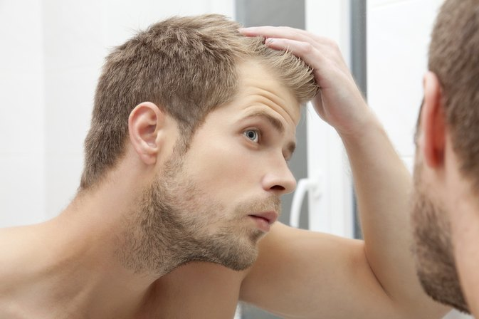 How to Tell If Your Hairline Is Receding