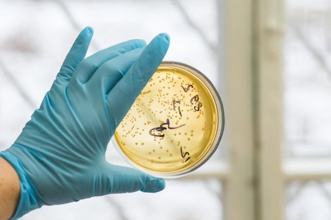 Four Conditions for Bacterial Growth