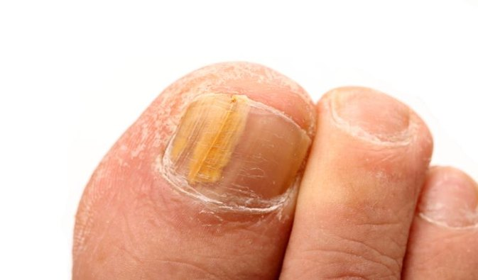 Emu Oil Remedy for Toenail Fungus