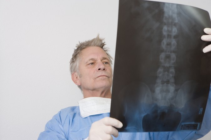 What Are the Causes of Sacroiliac Subluxation?