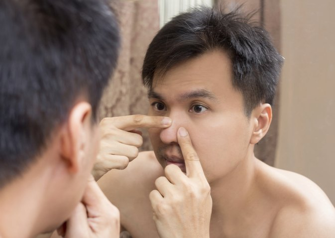 How to Pop a Pimple on Your Nose