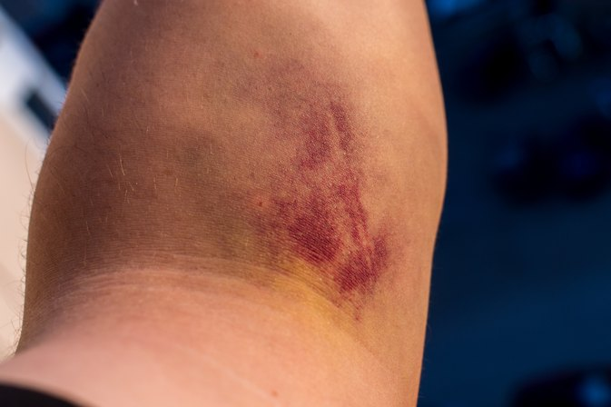 What Can I Take to Prevent Bruising?