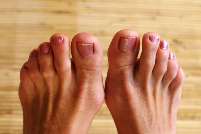 How To Make a Bunion Brace