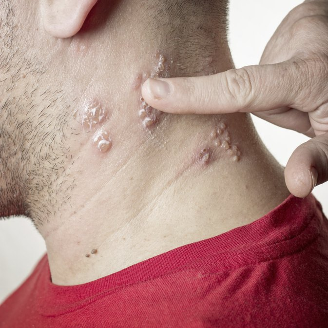 3 Ways to Treat Throat Shingles
