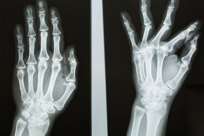5 Things You Need to Know About Boxer's Fractures