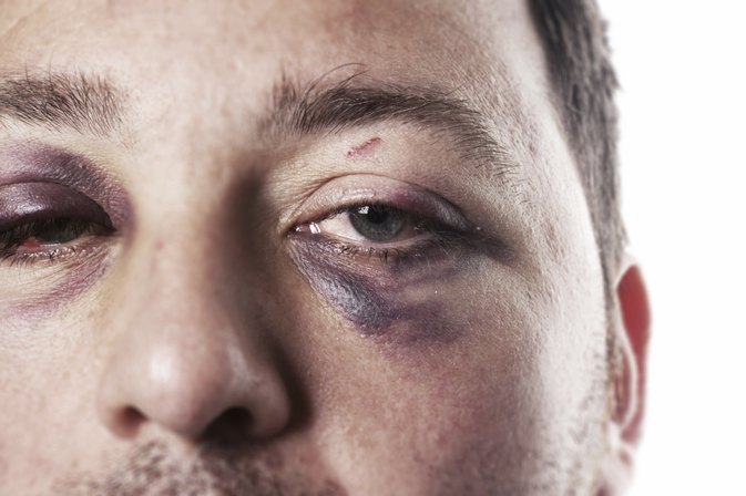Fractured Eye Socket Symptoms