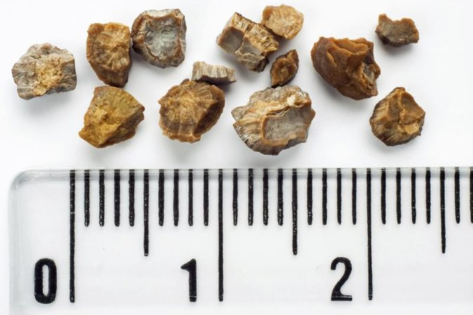 Symptoms of a Struvite Kidney Stone