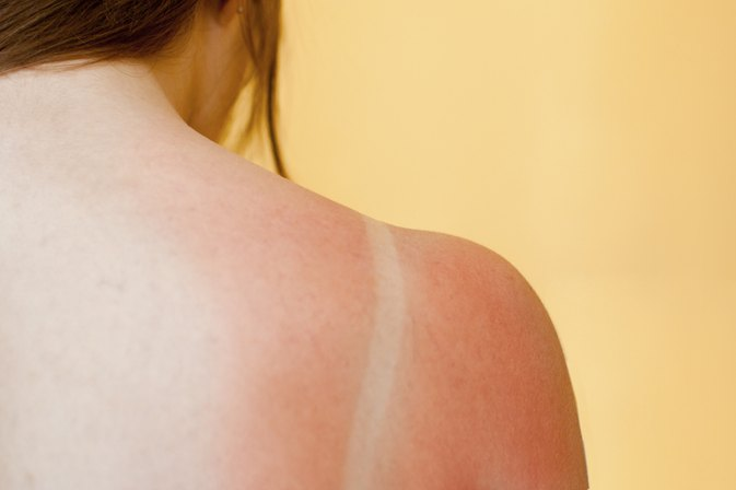 How to Remove Peeling Skin From a Sunburn